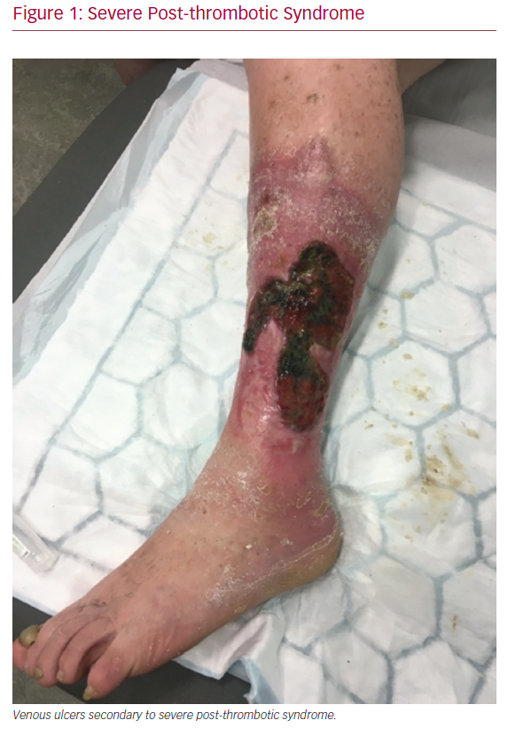 Severe Post-thrombotic Syndrome