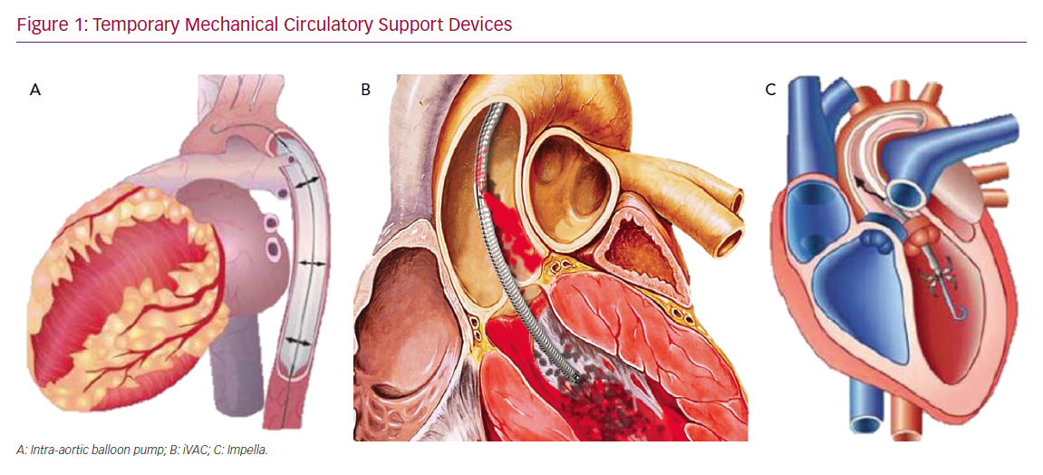 Temporary Mechanical Circulatory Support Devices