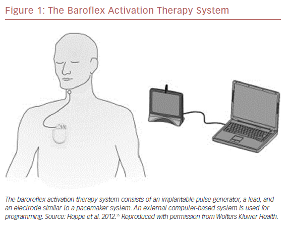The Baroflex Activation Therapy System