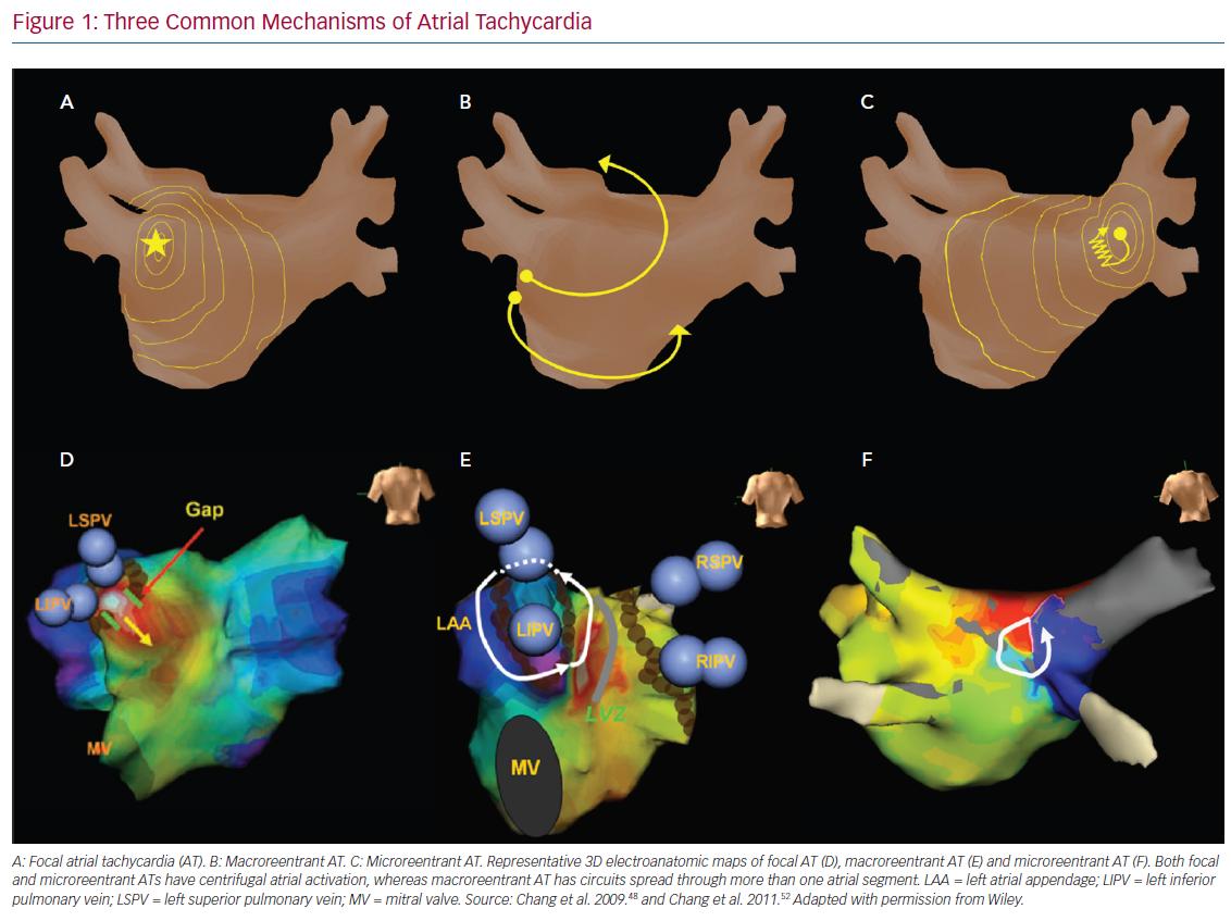 Three Common Mechanisms of Atrial Tachycardia