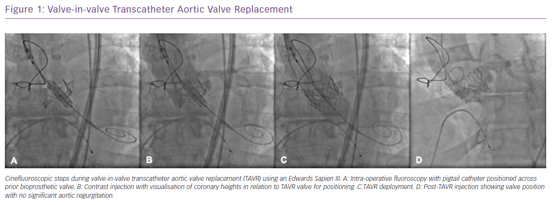 Valve-in-valve Transcatheter Aortic Valve Replacement