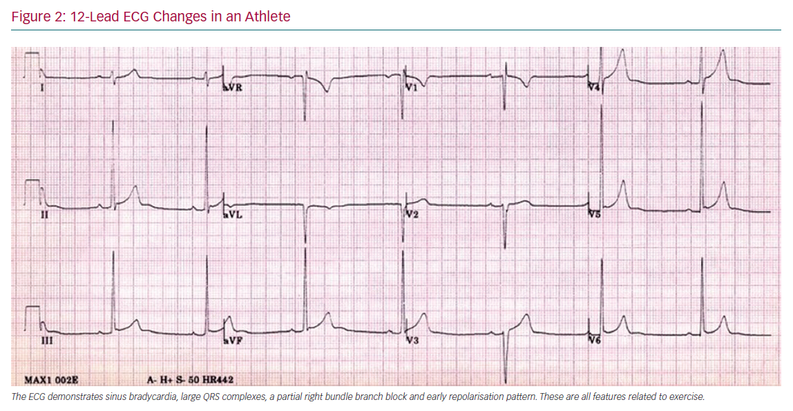 12-Lead ECG Changes in an Athlete