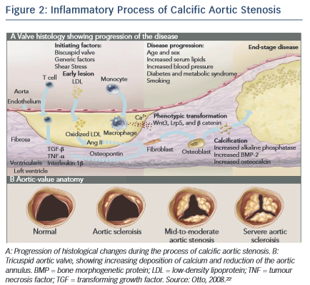 Inflammatory Process of Calcific Aortic Stenosis