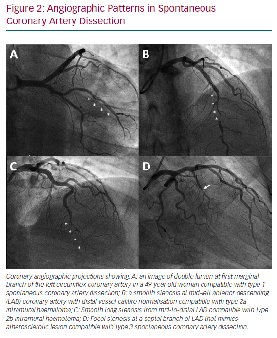 Angiographic Patterns in Spontaneous Coronary Artery Dissection