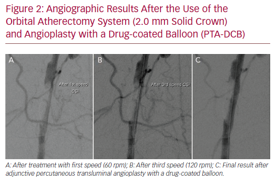 Angiographic Results After the Use of the Orbital Atherectomy System