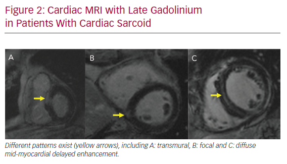 Cardiac MRI with Late Gadolinium in Patients With Cardiac Sarcoid