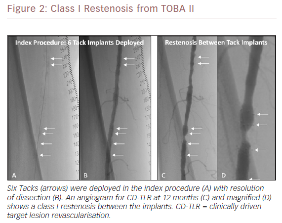 Class I Restenosis from TOBA II