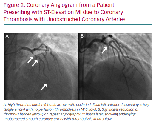 Coronary Angiogram from a Patient Presenting