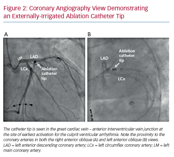 Coronary Angiography View Demonstrating an Externally-Irrigated Ablation Catheter Tip