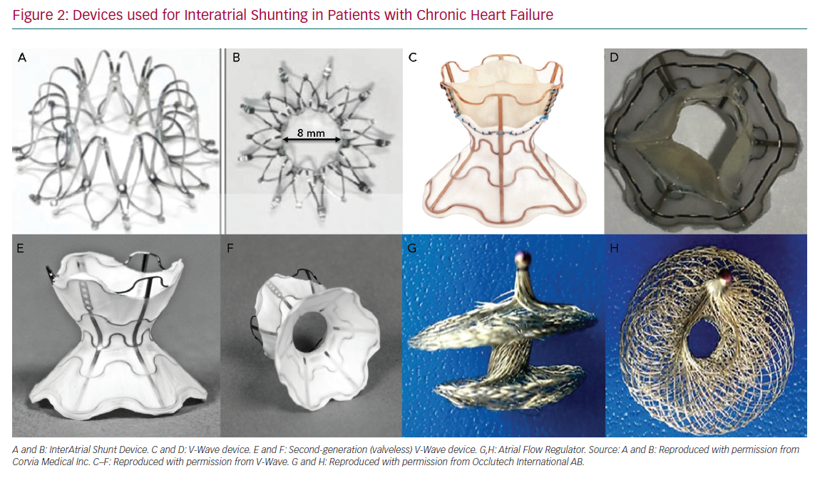 Devices used for Interatrial Shunting in Patients with Chronic Heart Failure