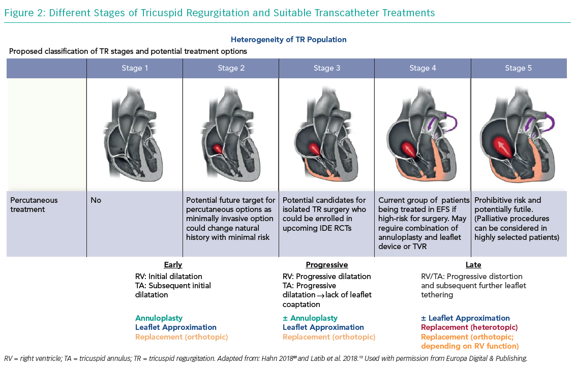 Different Stages of Tricuspid Regurgitation and Suitable Transcatheter Treatments