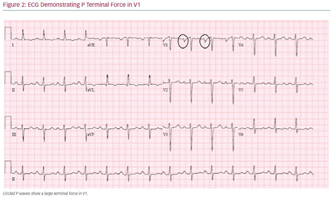 ECG Demonstrating P Terminal Force in V1