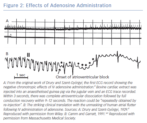 Effects of Adenosine Administration