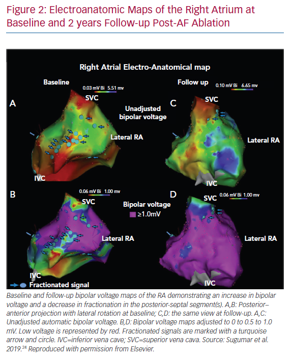 Electroanatomic Maps of the Right Atrium at Baseline