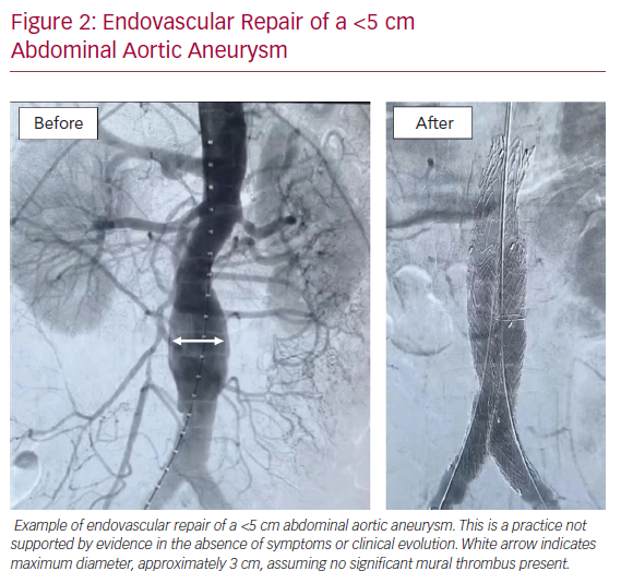 Endovascular Repair of a <5 cm Abdominal Aortic Aneurysm