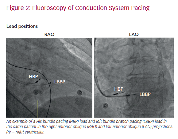Fluoroscopy of Conduction System Pacing