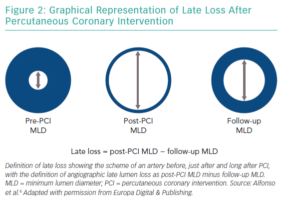 Graphical Representation of Late Loss After Percutaneous Coronary Intervention