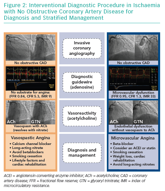 Interventional Diagnostic Procedure in Ischaemia