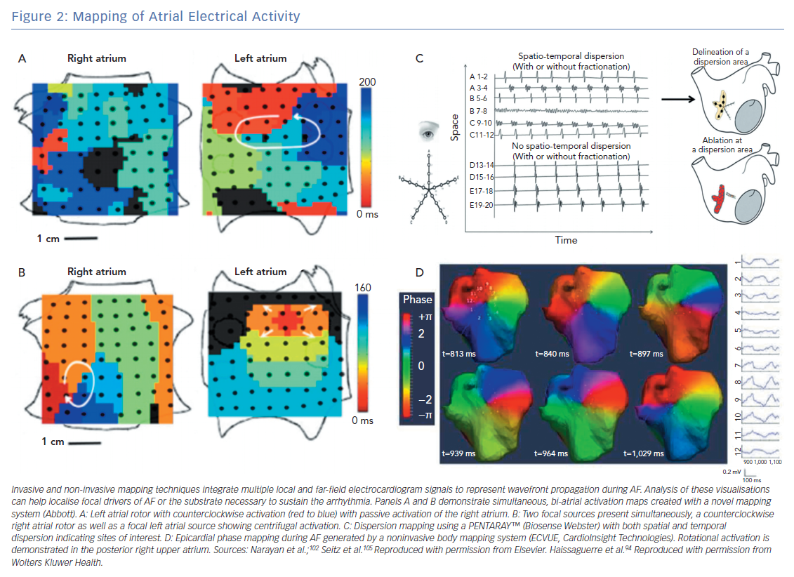 Mapping of Atrial Electrical Activity
