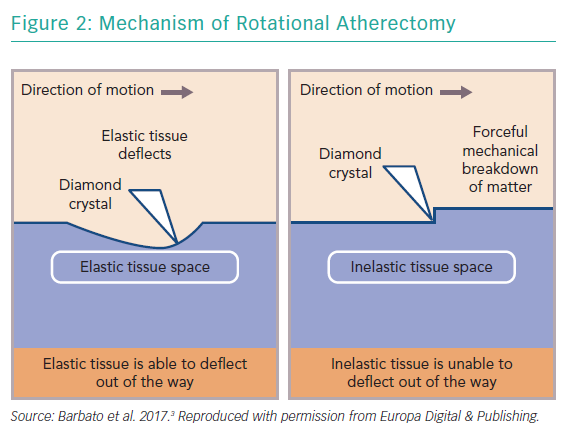 Mechanism of Rotational Atherectomy