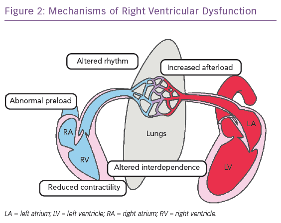 Mechanisms of Right Ventricular Dysfunction