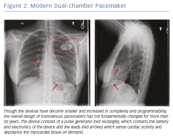 Modern Dual-chamber Pacemaker