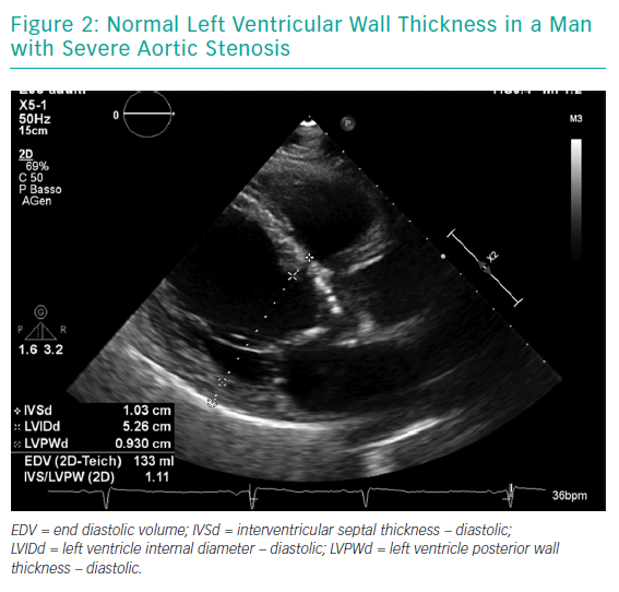 Normal Left Ventricular Wall Thickness in a Man with Severe Aortic Stenosis