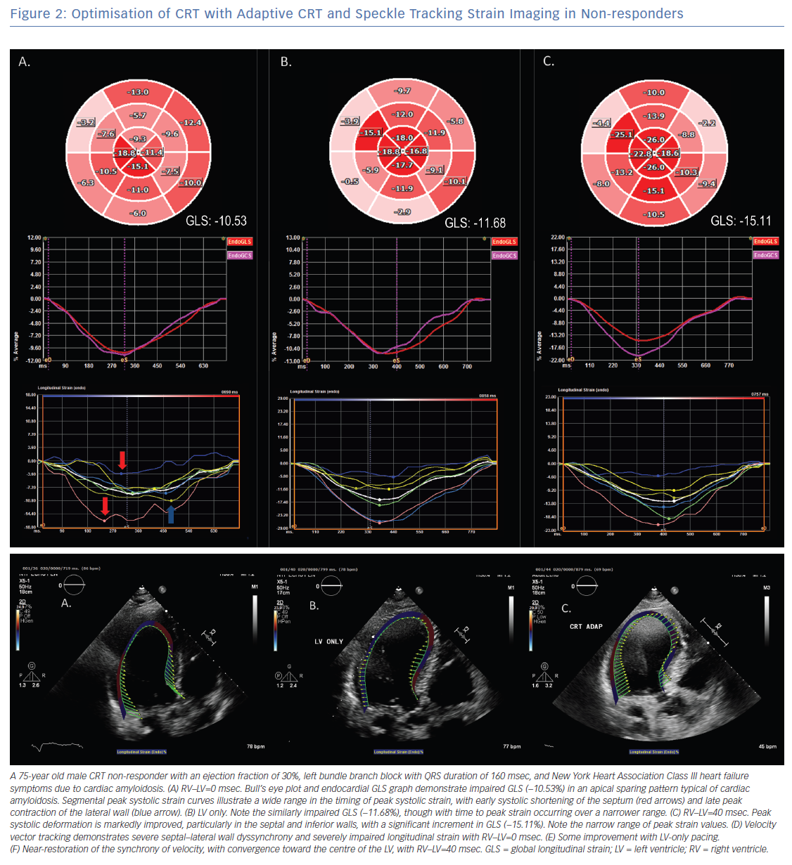 Optimisation of CRT with Adaptive CRT and Speckle Tracking Strain Imaging in Non-responders