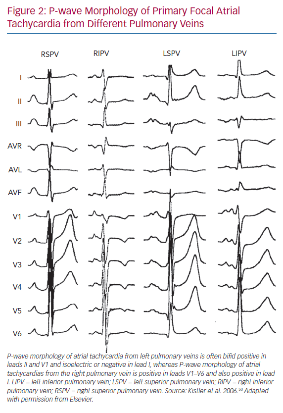 P-wave Morphology of Primary Focal Atrial Tachycardia from Different Pulmonary Veins