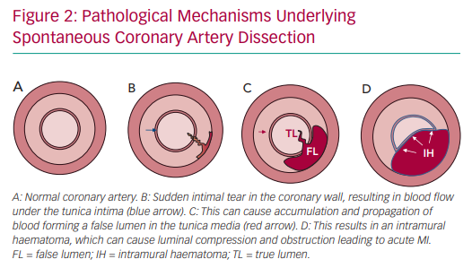 Pathological Mechanisms Underlying Spontaneous Coronary Artery Dissection