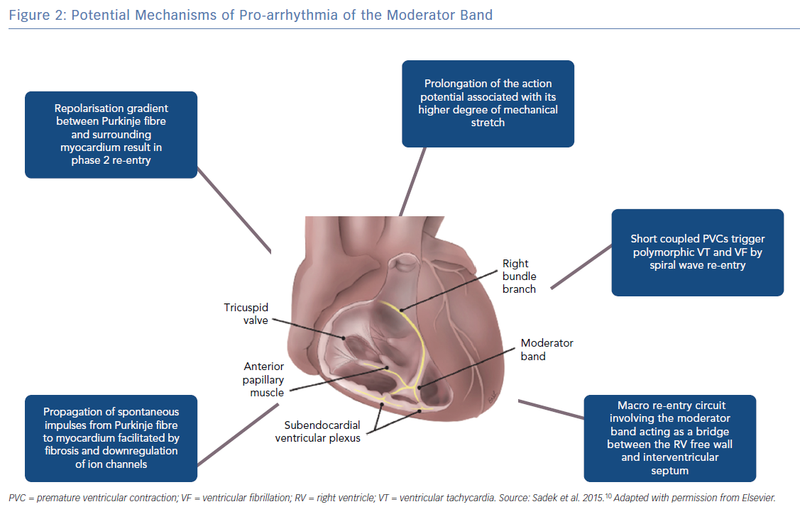 Potential Mechanisms of Pro-arrhythmia of the Moderator Band