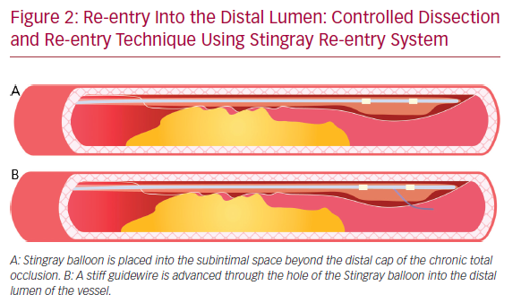 Re-entry Into the Distal Lumen