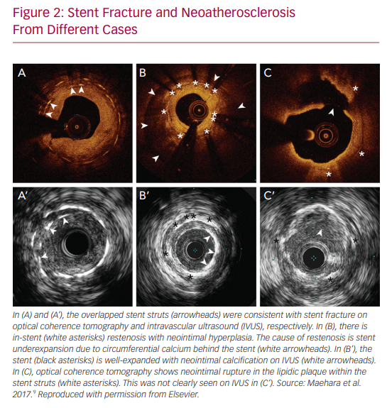 Stent Fracture and Neoatherosclerosis From Different Cases