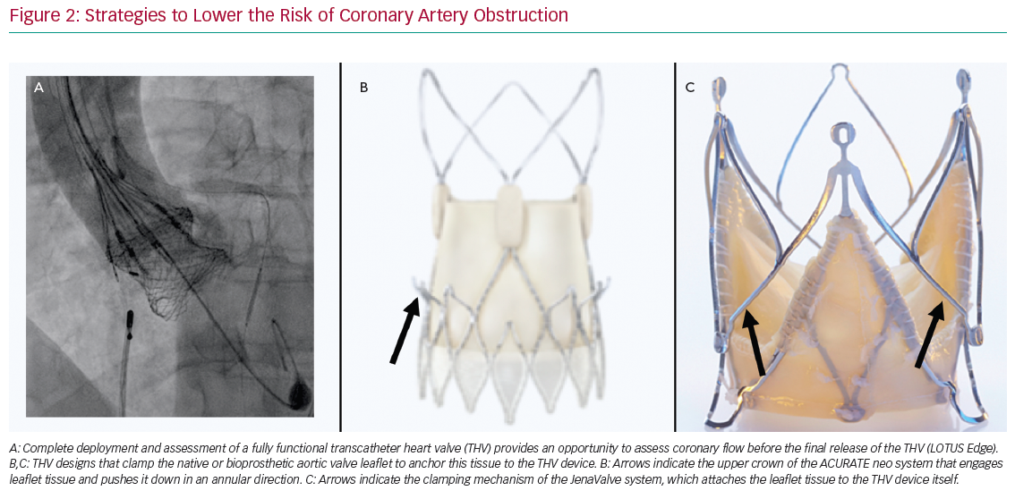 Strategies to Lower the Risk of Coronary Artery Obstruction