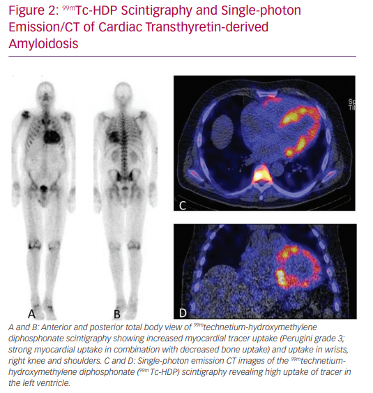 99mTc-HDP Scintigraphy and Single-photon Emission/CT of Cardiac Transthyretin-derived Amyloidosis