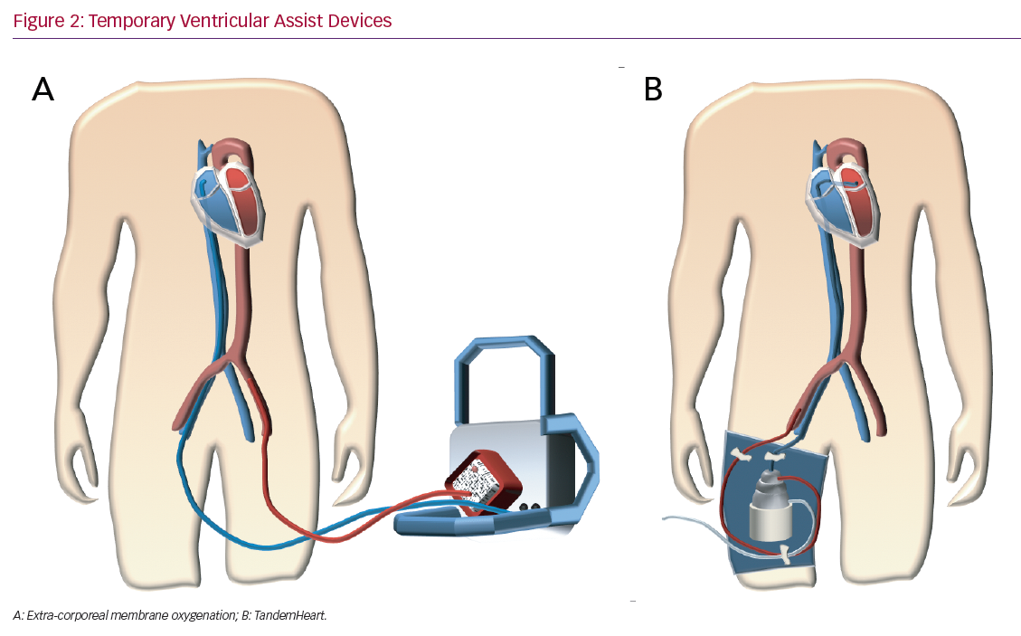 Temporary Ventricular Assist Devices