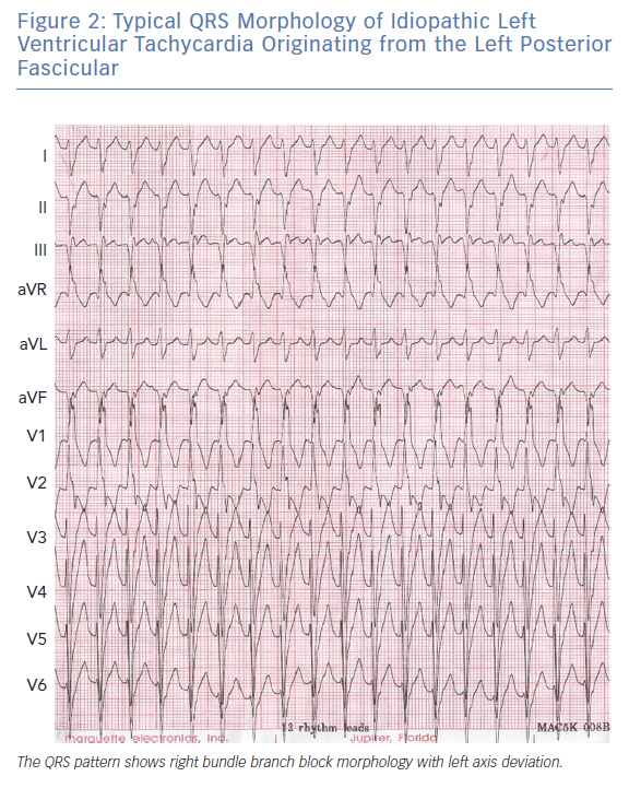 Typical QRS Morphology of Idiopathic Left Ventricular Tachycardia Originating from the Left Posterior Fascicular