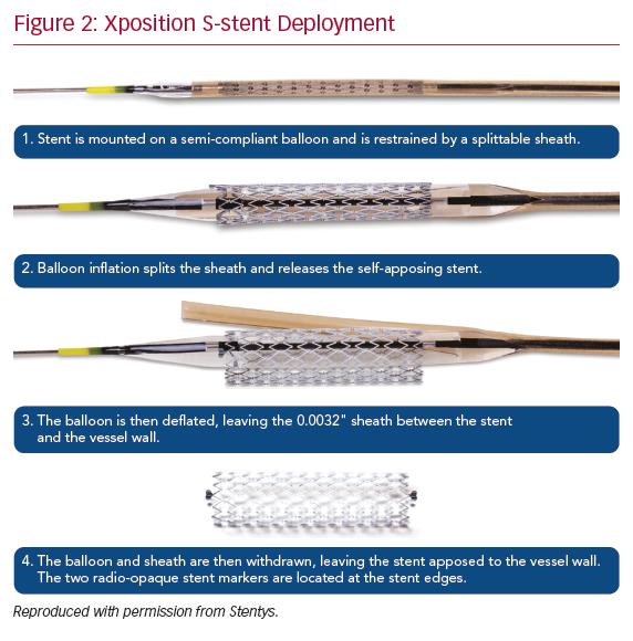 Xposition S-stent Deployment
