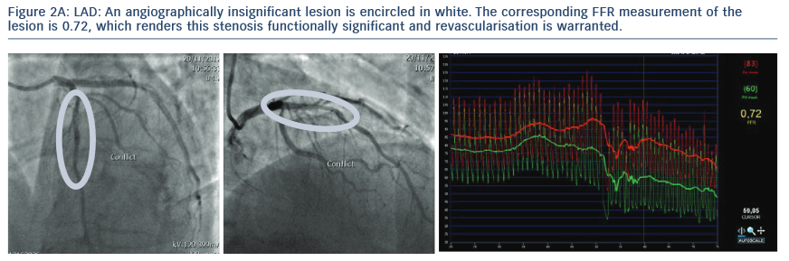 The corresponding FFR measurement of the lesion is 0.72, which renders this stenosis functionally significant and revascularisation iswarranted.