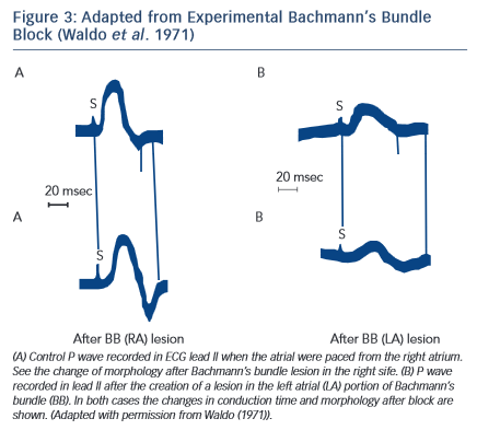 Figure 3: Adapted from Experimental Bachmann's Bundle Block (Waldo et al. 1971)