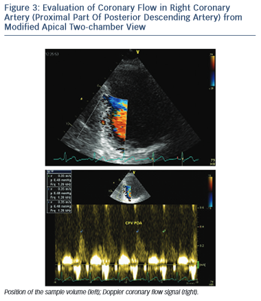 Evaluation of Coronary Flow in Right Coronary Artery (Proximal Part Of Posterior Descending Artery) from Modified Apical Two-chamber View
