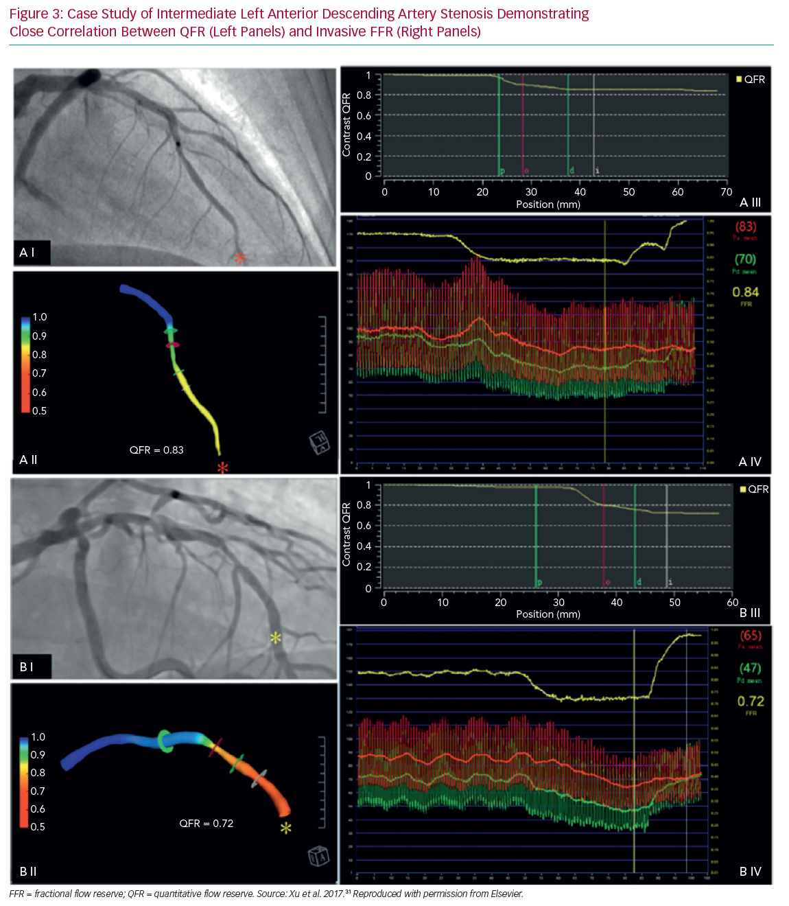 Case Study of Intermediate Left Anterior Descending