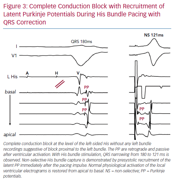 Complete Conduction Block with Recruitment