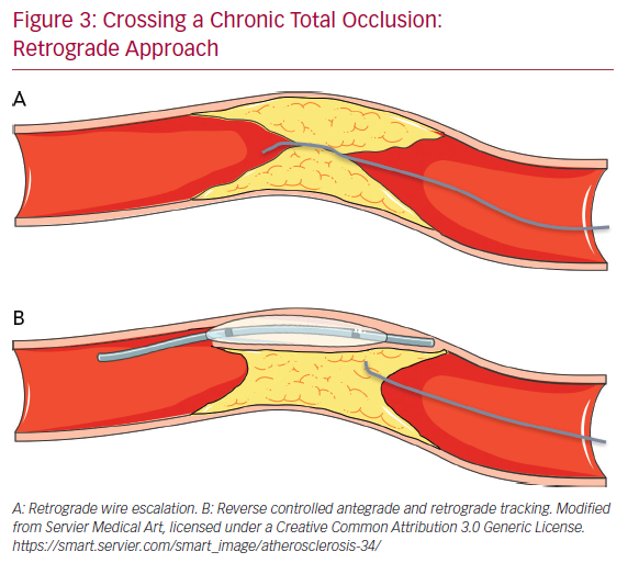 Crossing a Chronic Total Occlusion: Retrograde Approach