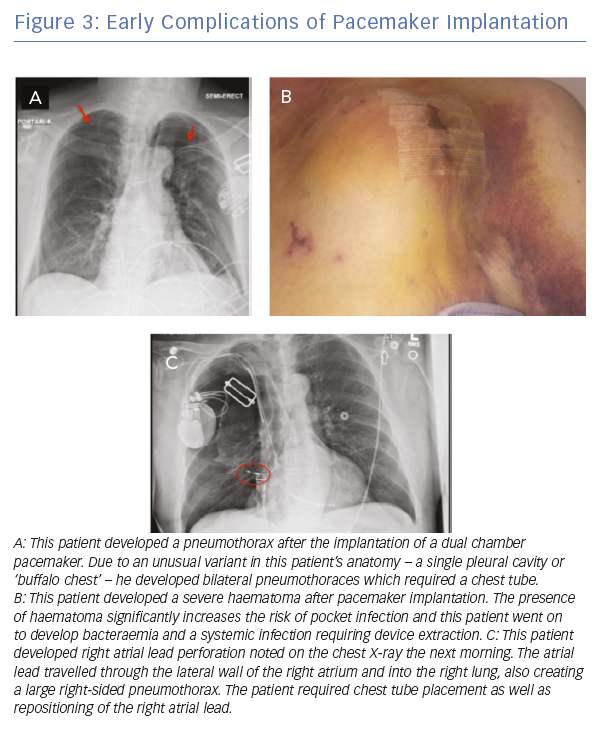 Early Complications of Pacemaker Implantation