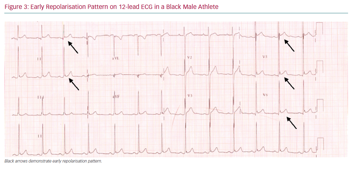 Early Repolarisation Pattern on 12-lead ECG in a Black Male Athlete