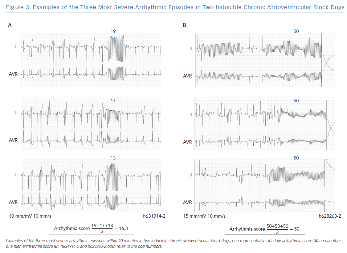 Examples of the Three Most Severe Arrhythmic Episodes
