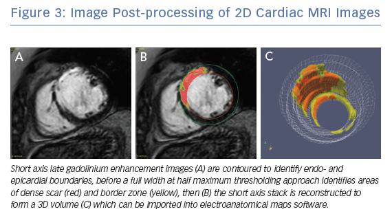 Image Post-processing of 2D Cardiac MRI Images
