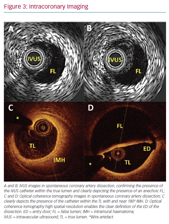 Intracoronary Imaging
