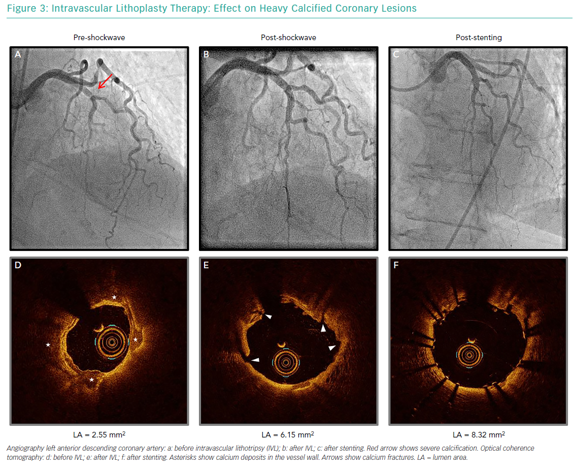 Intravascular Lithoplasty Therapy: Effect on Heavy Calcified Coronary Lesions
